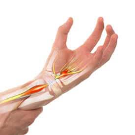 Soulager un engourdissements grâce à l'acupuncture