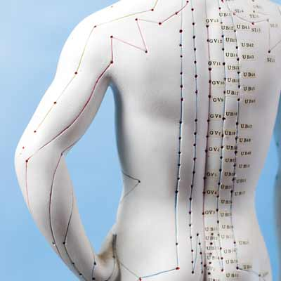 Traitement du corps par l'acupuncture