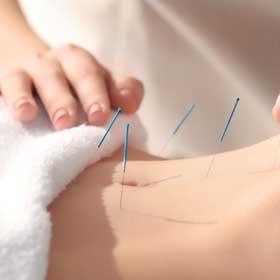 Tarifs - Acupuncture à Anjou, Montréal